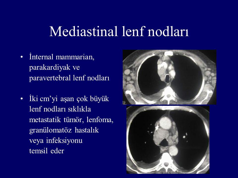Mediastinal lenf nodları İnternal mammarian, parakardiyak ve paravertebral lenf nodları İki cm'yi aşan çok büyük lenf nodları sıklıkla metastatik tümö