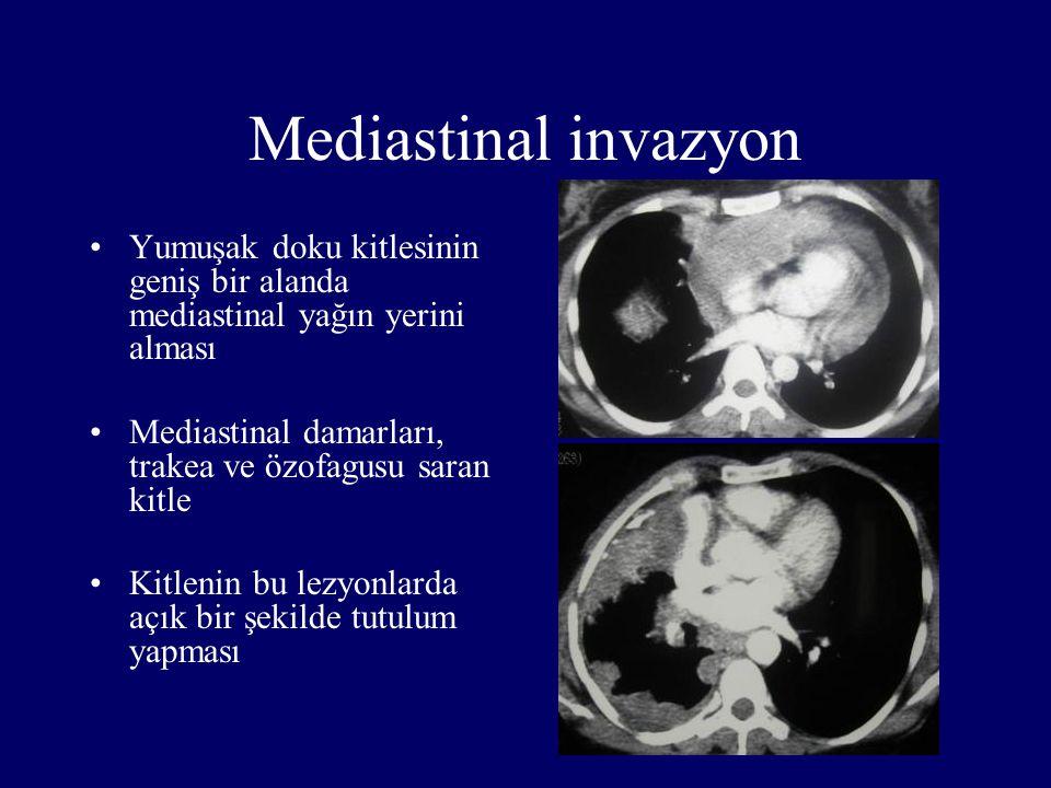Mediastinal invazyon Yumuşak doku kitlesinin geniş bir alanda mediastinal yağın yerini alması Mediastinal damarları, trakea ve özofagusu saran kitle K
