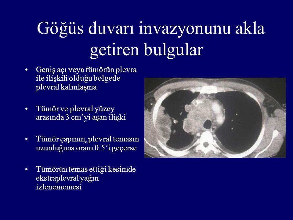 Göğüs duvarı invazyonunu akla getiren bulgular Geniş açı veya tümörün plevra ile ilişkili olduğu bölgede plevral kalınlaşma Tümör ve plevral yüzey ara