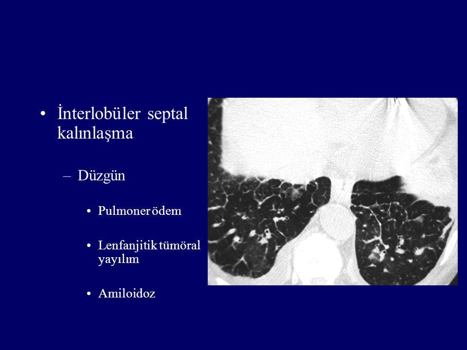 İnterlobüler septal kalınlaşma –Düzgün Pulmoner ödem Lenfanjitik tümöral yayılım Amiloidoz