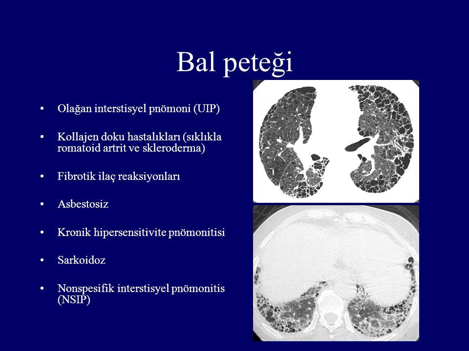 Bal peteği Olağan interstisyel pnömoni (UIP) Kollajen doku hastalıkları (sıklıkla romatoid artrit ve skleroderma) Fibrotik ilaç reaksiyonları Asbestos