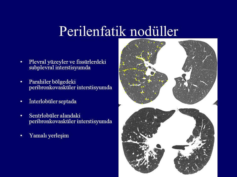 Perilenfatik nodüller Plevral yüzeyler ve fissürlerdeki subplevral interstisyumda Parahiler bölgedeki peribronkovasküler interstisyumda İnterlobüler s