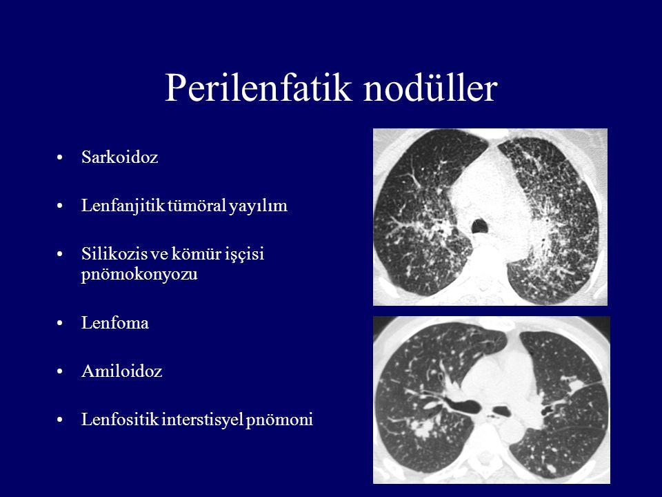 Perilenfatik nodüller Sarkoidoz Lenfanjitik tümöral yayılım Silikozis ve kömür işçisi pnömokonyozu Lenfoma Amiloidoz Lenfositik interstisyel pnömoni
