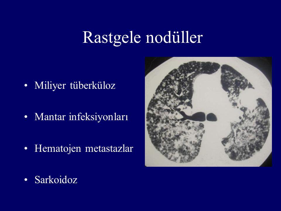 Rastgele nodüller Miliyer tüberküloz Mantar infeksiyonları Hematojen metastazlar Sarkoidoz