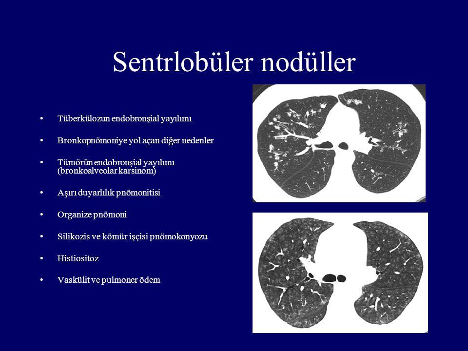 Sentrlobüler nodüller Tüberkülozun endobronşial yayılımı Bronkopnömoniye yol açan diğer nedenler Tümörün endobronşial yayılımı (bronkoalveolar karsino
