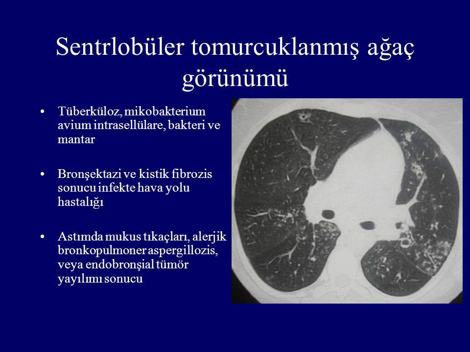 Sentrlobüler tomurcuklanmış ağaç görünümü Tüberküloz, mikobakterium avium intrasellülare, bakteri ve mantar Bronşektazi ve kistik fibrozis sonucu infe