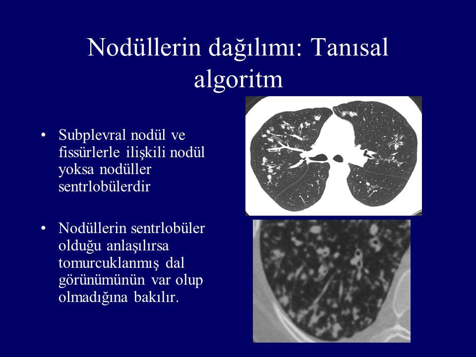 Nodüllerin dağılımı: Tanısal algoritm Subplevral nodül ve fissürlerle ilişkili nodül yoksa nodüller sentrlobülerdir Nodüllerin sentrlobüler olduğu anl