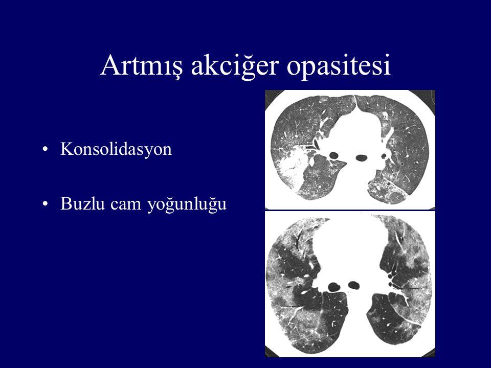 Artmış akciğer opasitesi Konsolidasyon Buzlu cam yoğunluğu