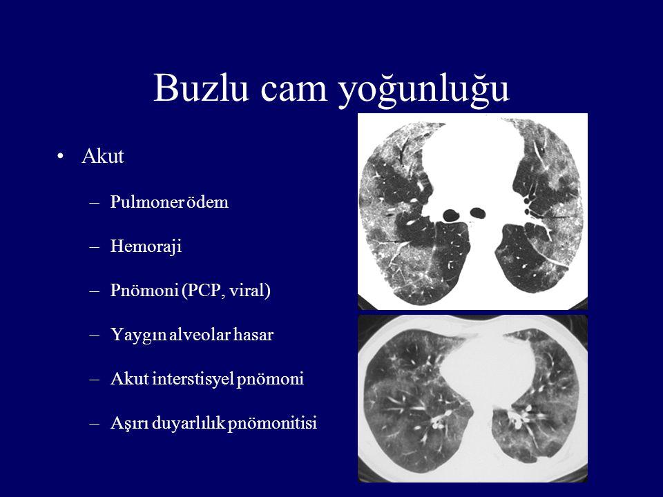 Buzlu cam yoğunluğu Akut –Pulmoner ödem –Hemoraji –Pnömoni (PCP, viral) –Yaygın alveolar hasar –Akut interstisyel pnömoni –Aşırı duyarlılık pnömonitis