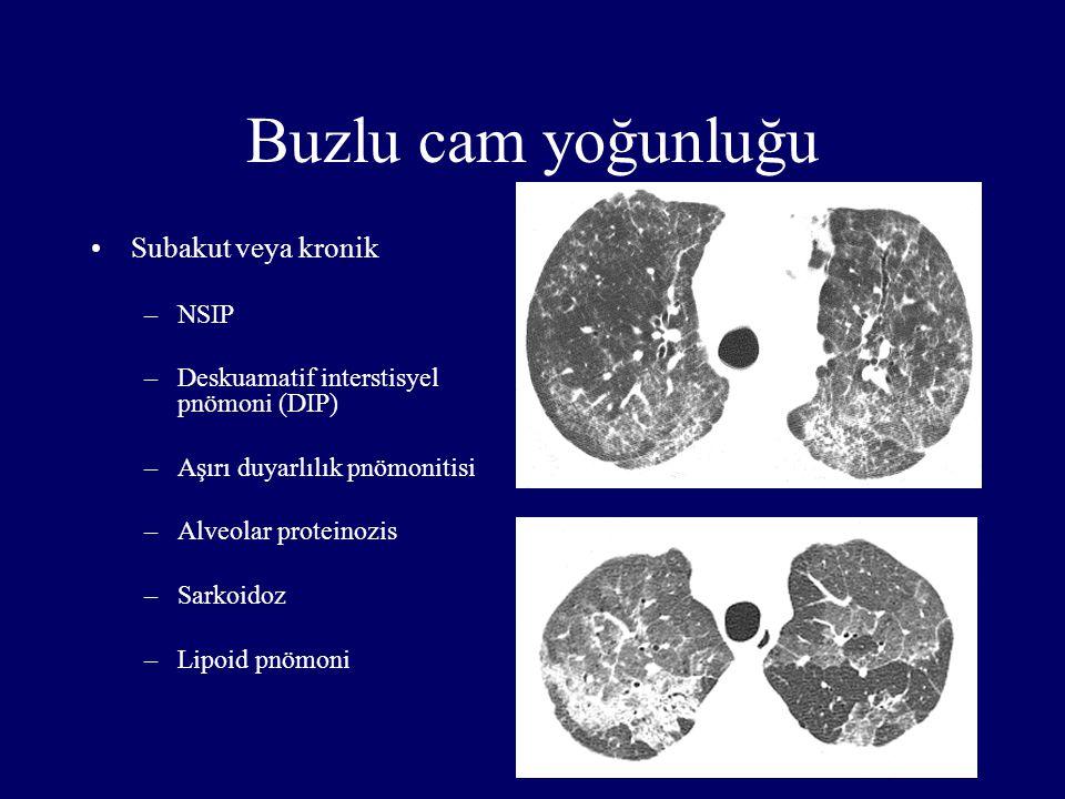 Buzlu cam yoğunluğu Subakut veya kronik –NSIP –Deskuamatif interstisyel pnömoni (DIP) –Aşırı duyarlılık pnömonitisi –Alveolar proteinozis –Sarkoidoz –