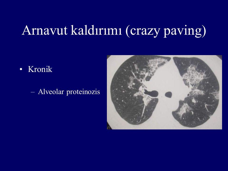 Arnavut kaldırımı (crazy paving) Kronik –Alveolar proteinozis