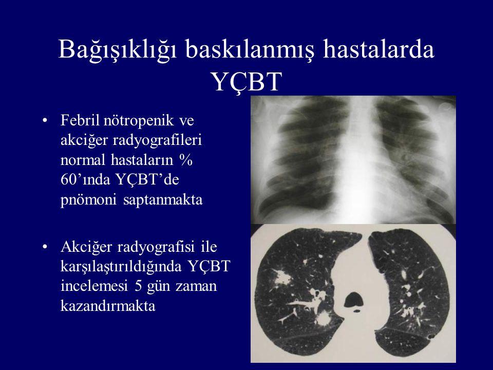 Bağışıklığı baskılanmış hastalarda YÇBT Febril nötropenik ve akciğer radyografileri normal hastaların % 60'ında YÇBT'de pnömoni saptanmakta Akciğer ra