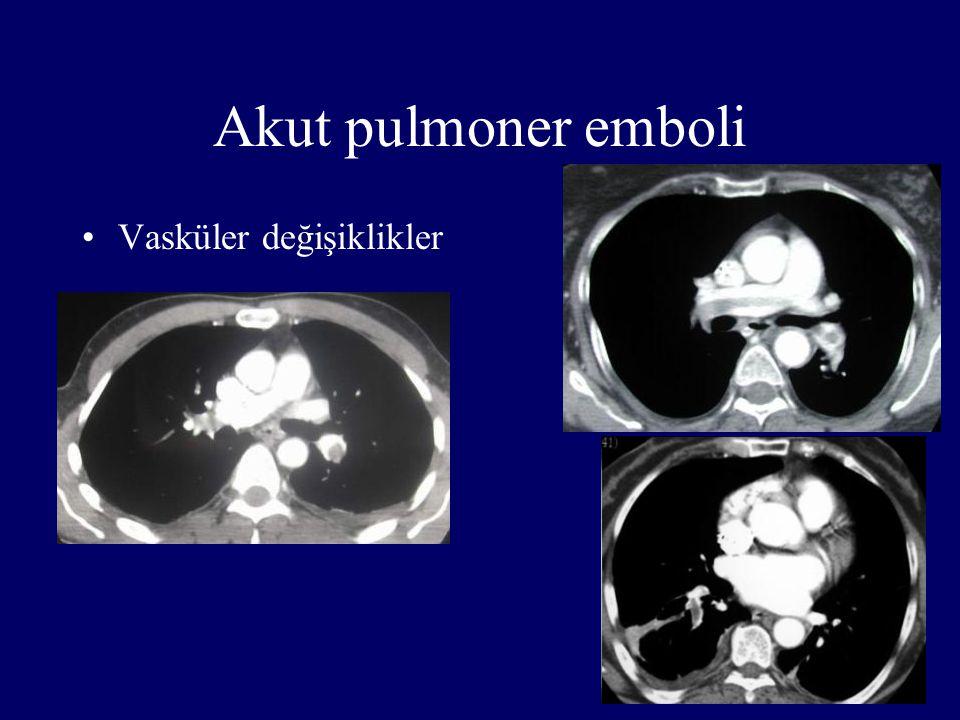 Akut pulmoner emboli Vasküler değişiklikler