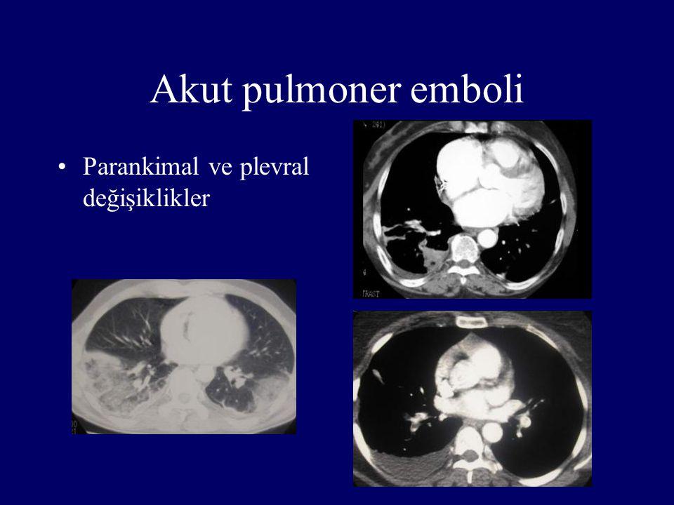 Akut pulmoner emboli Parankimal ve plevral değişiklikler