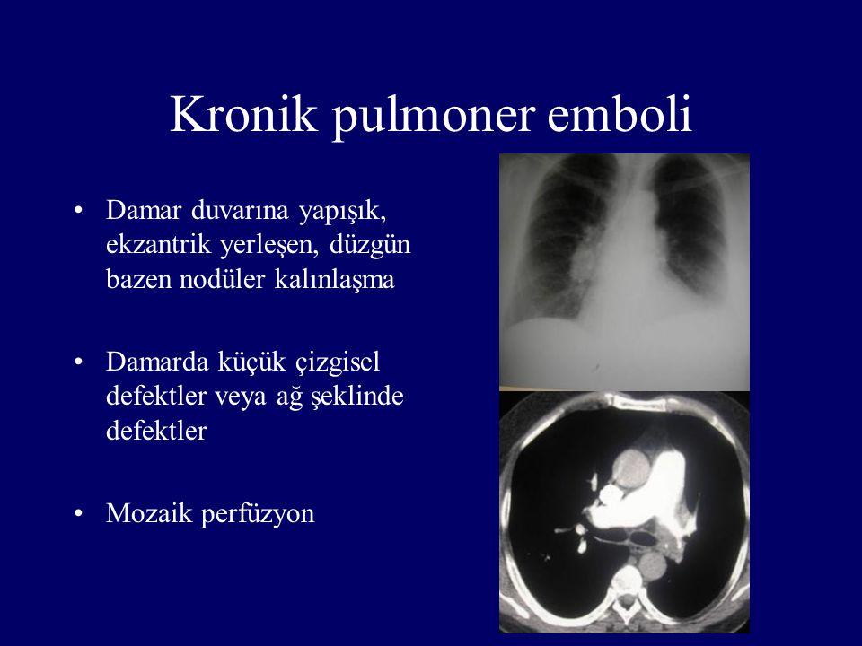 Kronik pulmoner emboli Damar duvarına yapışık, ekzantrik yerleşen, düzgün bazen nodüler kalınlaşma Damarda küçük çizgisel defektler veya ağ şeklinde d
