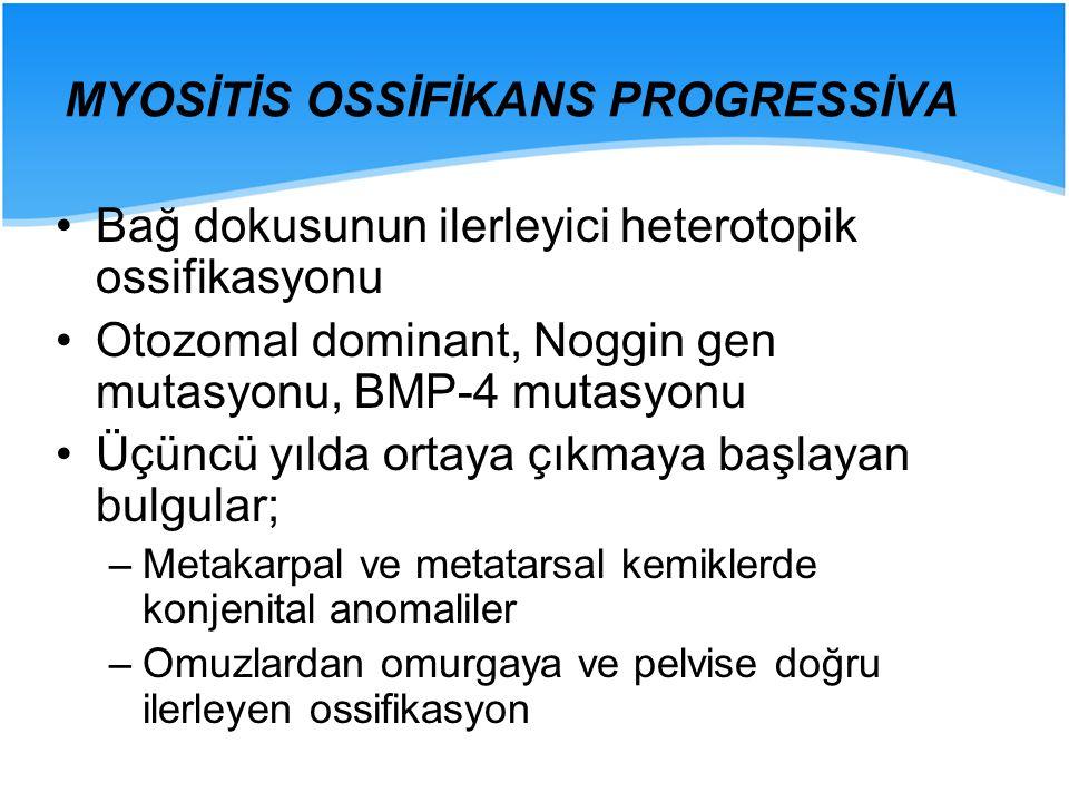 MYOSİTİS OSSİFİKANS PROGRESSİVA Bağ dokusunun ilerleyici heterotopik ossifikasyonu Otozomal dominant, Noggin gen mutasyonu, BMP-4 mutasyonu Üçüncü yıl