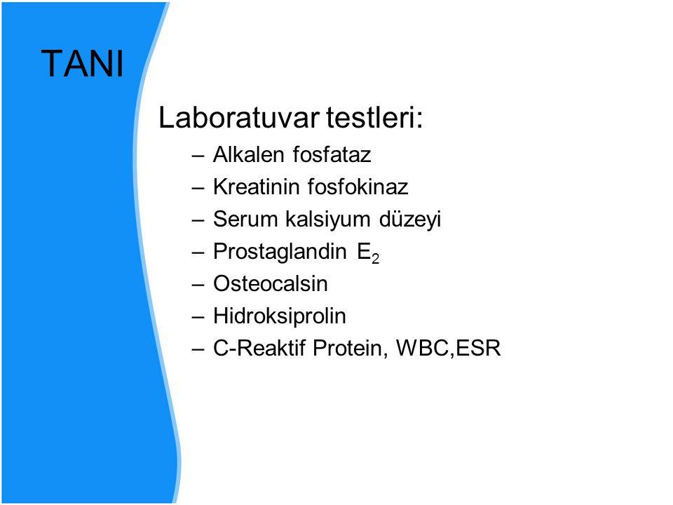 TANI Laboratuvar testleri: –Alkalen fosfataz –Kreatinin fosfokinaz –Serum kalsiyum düzeyi –Prostaglandin E 2 –Osteocalsin –Hidroksiprolin –C-Reaktif P