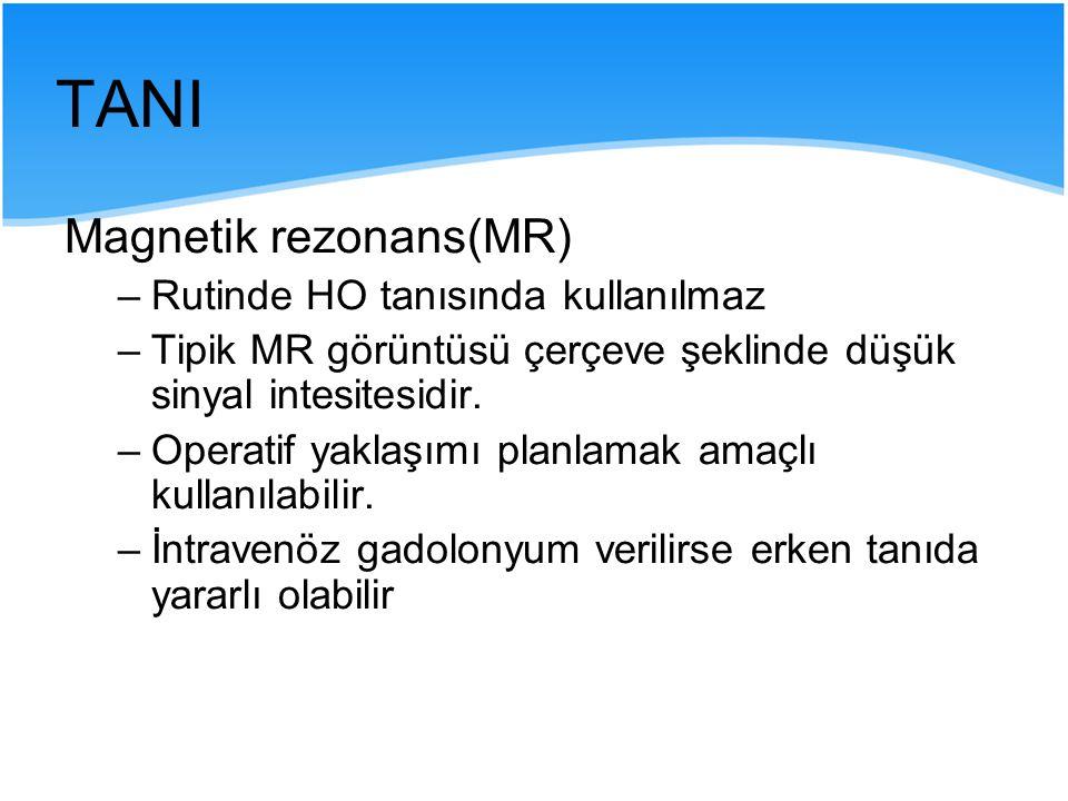 TANI Magnetik rezonans(MR) –Rutinde HO tanısında kullanılmaz –Tipik MR görüntüsü çerçeve şeklinde düşük sinyal intesitesidir. –Operatif yaklaşımı plan