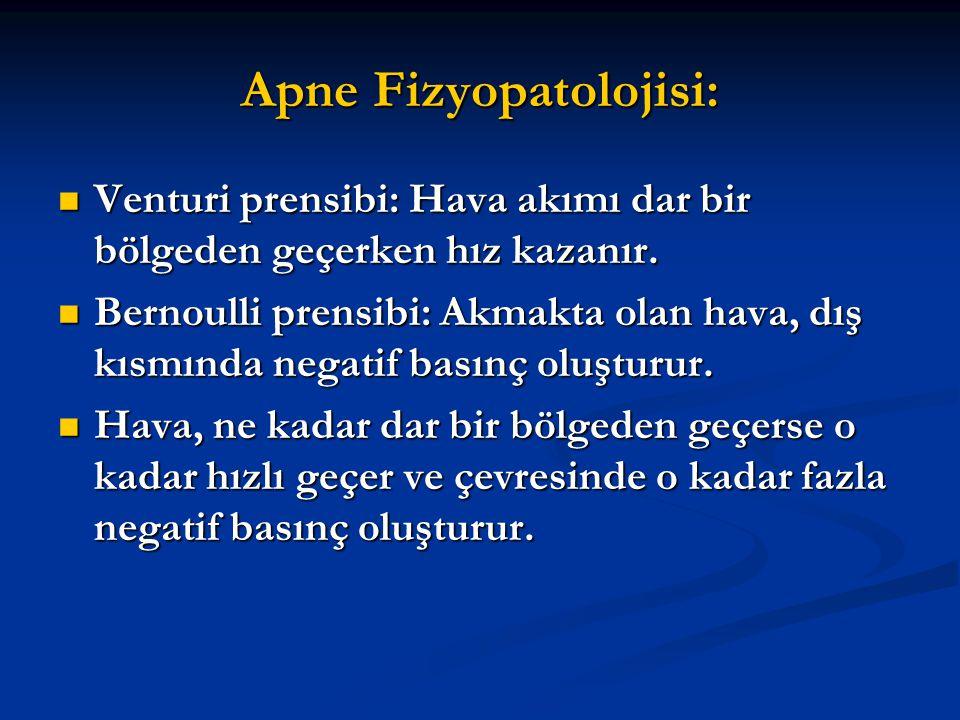 Apne Fizyopatolojisi: Venturi prensibi: Hava akımı dar bir bölgeden geçerken hız kazanır. Venturi prensibi: Hava akımı dar bir bölgeden geçerken hız k
