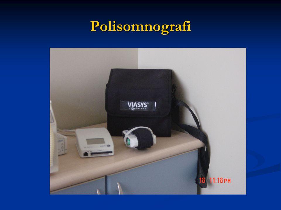 Polisomnografi