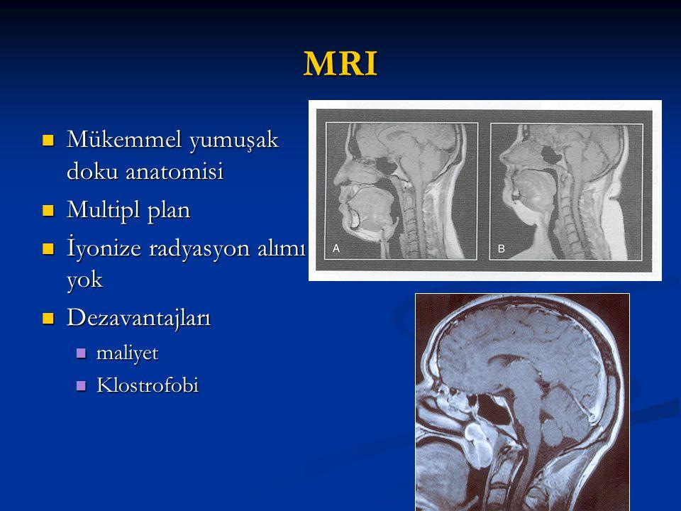 MRI Mükemmel yumuşak doku anatomisi Mükemmel yumuşak doku anatomisi Multipl plan Multipl plan İyonize radyasyon alımı yok İyonize radyasyon alımı yok