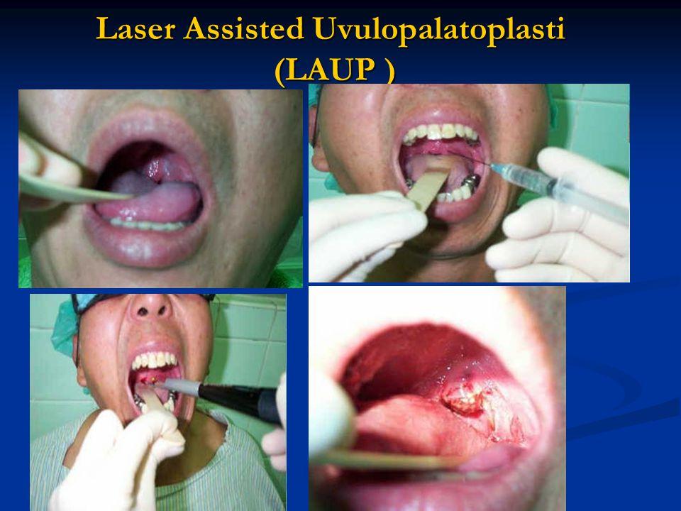 Laser Assisted Uvulopalatoplasti (LAUP )