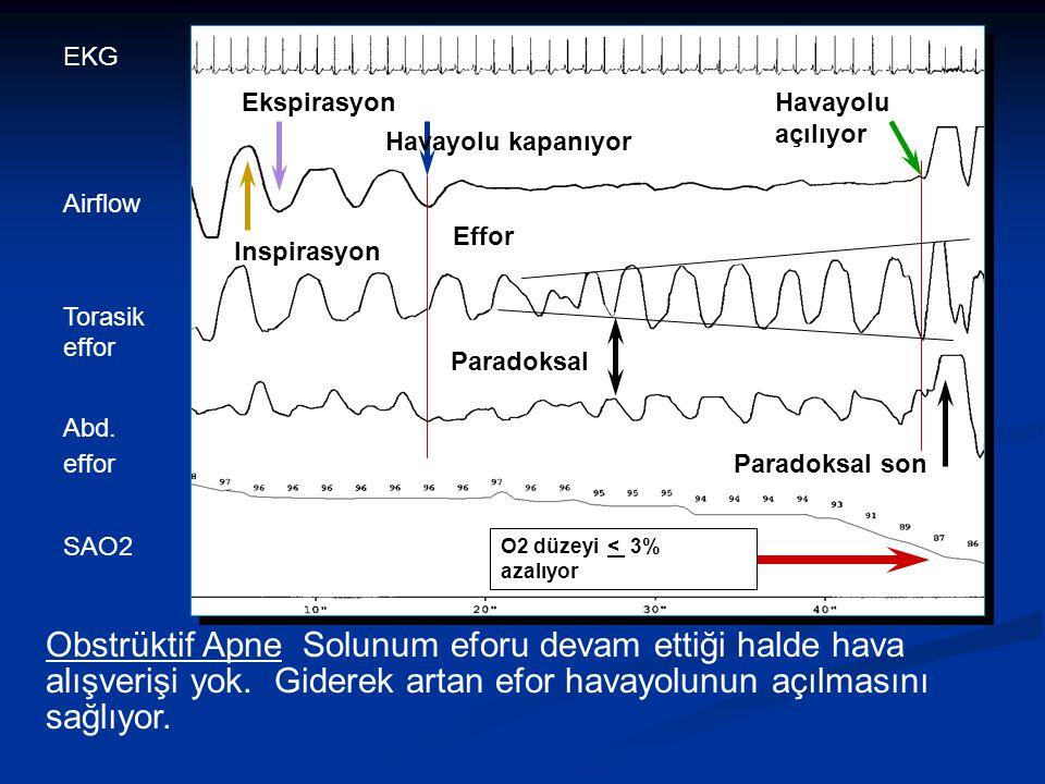 TanıAnamnez Fizik muayene Üst solunum yollarının endoskopik muayenesi Müller manevrası Polisomnografi Radyolojik CT MR Sefalometrik ölçümler