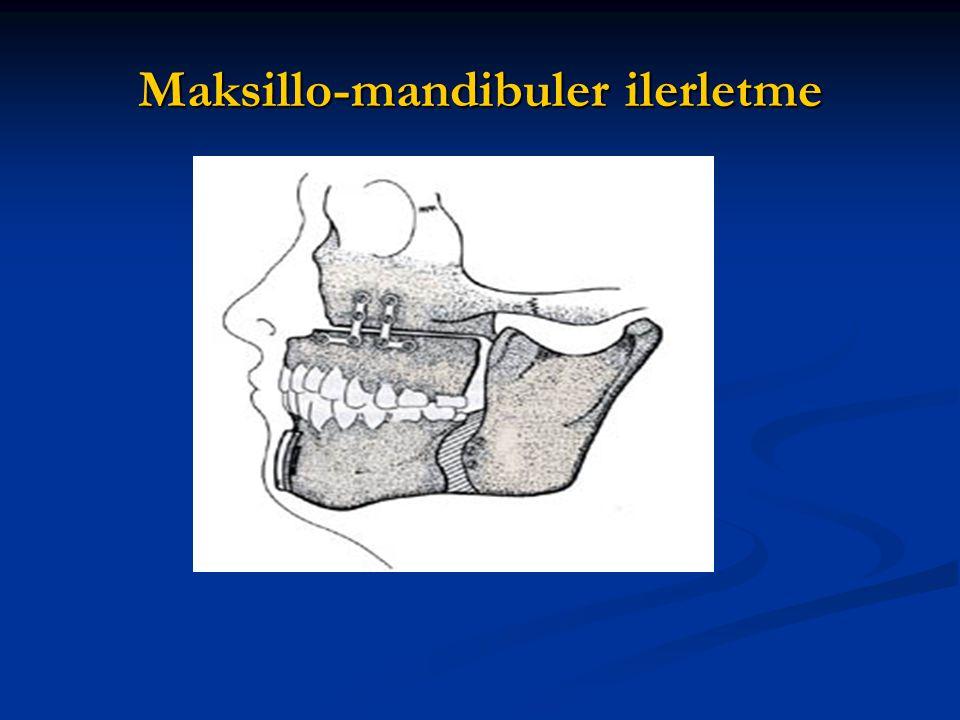 Maksillo-mandibuler ilerletme