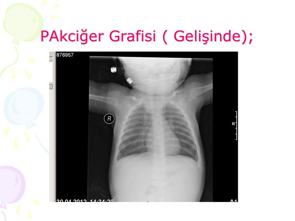 PAkciğer Grafisi ( Gelişinde);