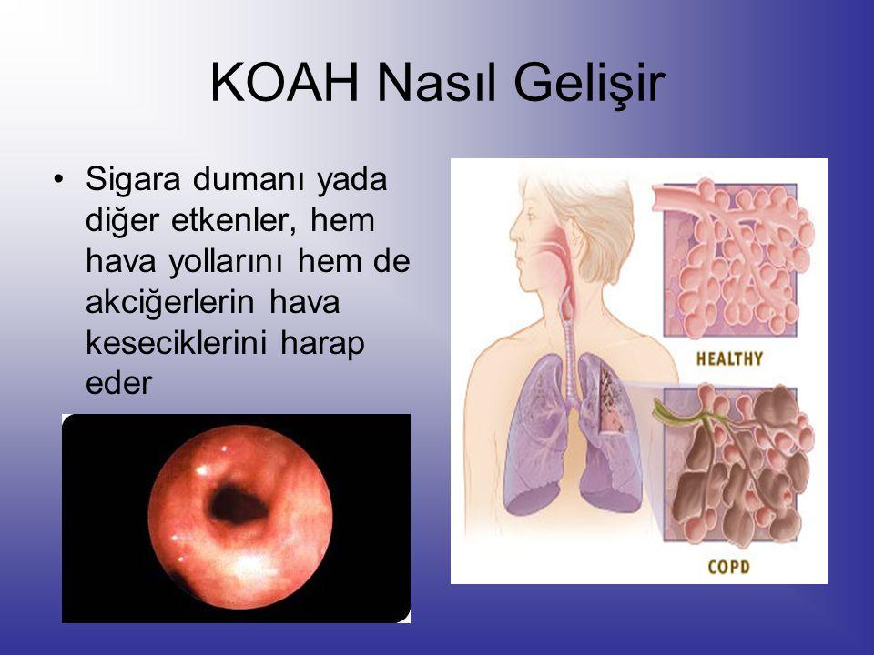 KOAH Nasıl Gelişir Sigara dumanı yada diğer etkenler, hem hava yollarını hem de akciğerlerin hava keseciklerini harap eder