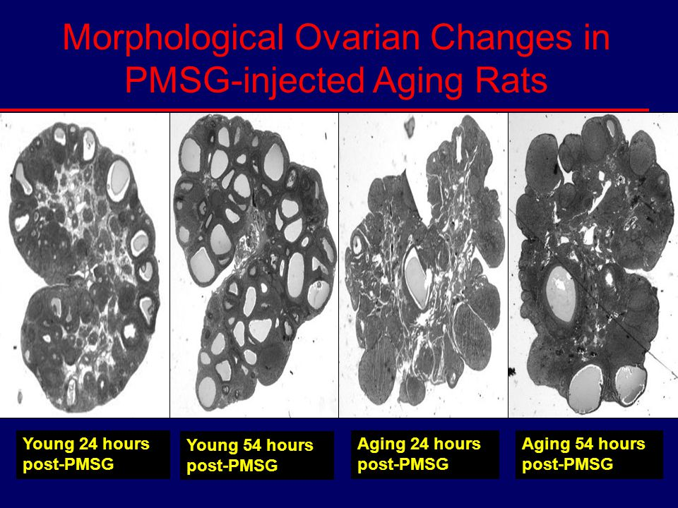 Young 54 hours post-PMSG Young 24 hours post-PMSG Aging 24 hours post-PMSG Aging 54 hours post-PMSG Morphological Ovarian Changes in PMSG-injected Agi
