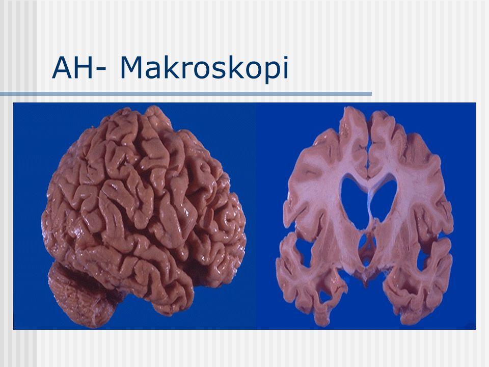 AH- Mikroskopi *Senil(Nöritik)Plaklar *Nörofibriller İğcikler *Nöronal kayıp-subreaktif gliozis *Granulovakuoler Dejenerasyon Not: Bu bulgulara ileri yaşlılıkta ve diğer bazı nörodejeneratif hastalıklarda da rastlanabilmektedir.
