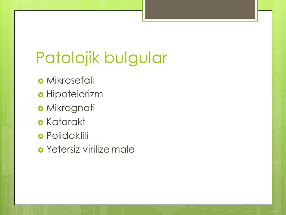 Patolojik bulgular  Mikrosefali  Hipotelorizm  Mikrognati  Katarakt  Polidaktili  Yetersiz virilize male