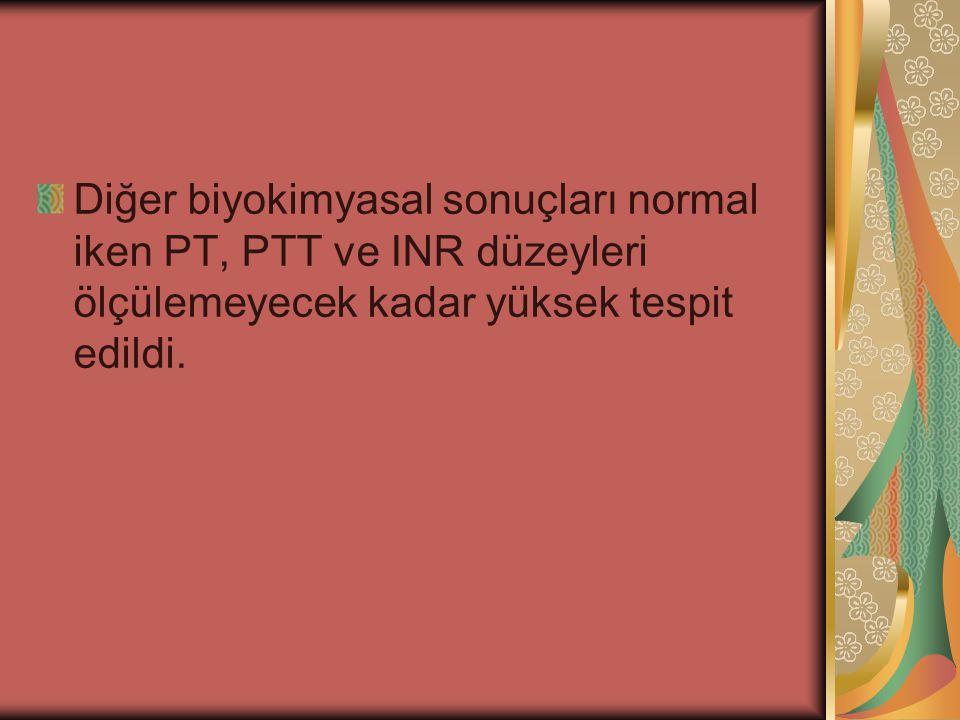 Diğer biyokimyasal sonuçları normal iken PT, PTT ve INR düzeyleri ölçülemeyecek kadar yüksek tespit edildi.