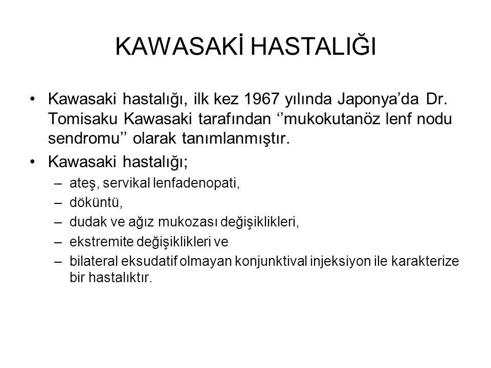 KAWASAKİ HASTALIĞI Kawasaki hastalığı, ilk kez 1967 yılında Japonya'da Dr. Tomisaku Kawasaki tarafından ''mukokutanöz lenf nodu sendromu'' olarak tanı