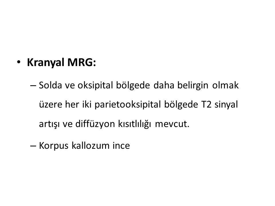 Kranyal MRG: – Solda ve oksipital bölgede daha belirgin olmak üzere her iki parietooksipital bölgede T2 sinyal artışı ve diffüzyon kısıtlılığı mevcut.