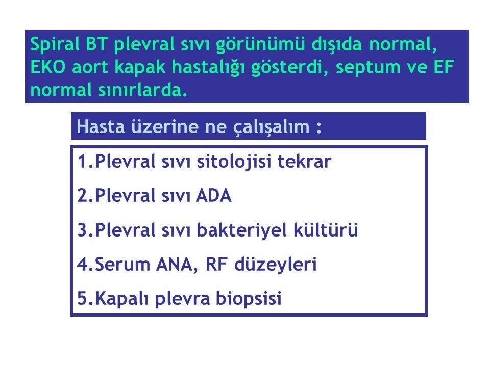 Spiral BT plevral sıvı görünümü dışıda normal, EKO aort kapak hastalığı gösterdi, septum ve EF normal sınırlarda. 1.Plevral sıvı sitolojisi tekrar 2.P