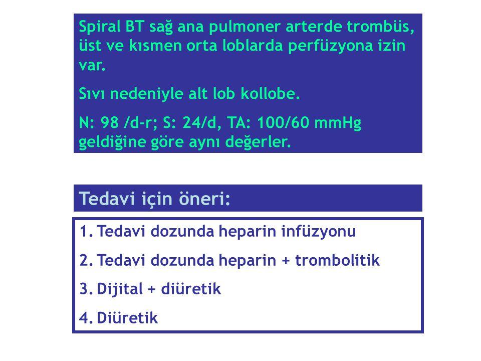 1.Tedavi dozunda heparin infüzyonu 2.Tedavi dozunda heparin + trombolitik 3.Dijital + diüretik 4.Diüretik Tedavi için öneri: Spiral BT sağ ana pulmone