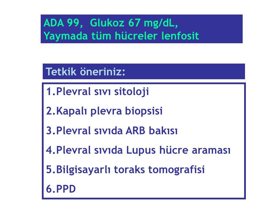 ADA 99, Glukoz 67 mg/dL, Yaymada tüm hücreler lenfosit 1.Plevral sıvı sitoloji 2.Kapalı plevra biopsisi 3.Plevral sıvıda ARB bakısı 4.Plevral sıvıda L