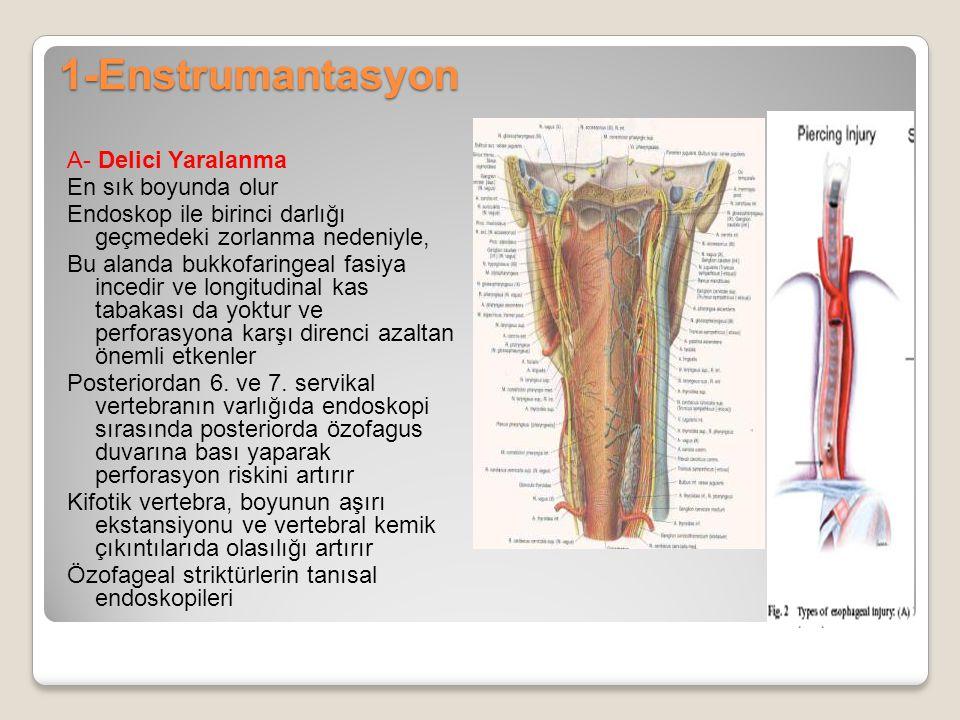 1-Enstrumantasyon A- Delici Yaralanma En sık boyunda olur Endoskop ile birinci darlığı geçmedeki zorlanma nedeniyle, Bu alanda bukkofaringeal fasiya i