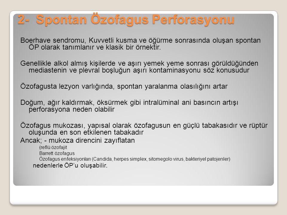 2- Spontan Özofagus Perforasyonu Boerhave sendromu, Kuvvetli kusma ve öğürme sonrasında oluşan spontan ÖP olarak tanımlanır ve klasik bir örnektir. Ge