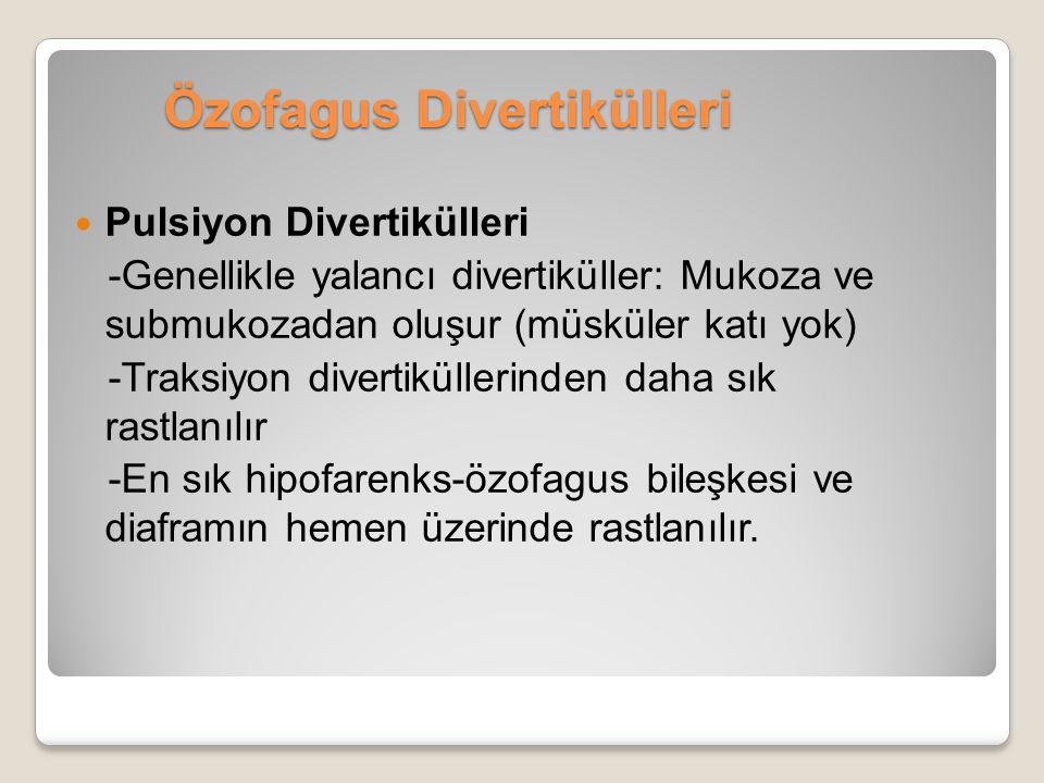 Özofagus Divertikülleri Pulsiyon Divertikülleri -Genellikle yalancı divertiküller: Mukoza ve submukozadan oluşur (müsküler katı yok) -Traksiyon divert