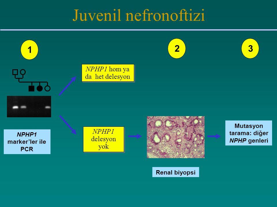 Juvenil nefronoftizi NPHP1 marker'ler ile PCR NPHP1 hom ya da het delesyon NPHP1 delesyon yok Renal biyopsi Mutasyon tarama: diğer NPHP genleri 123