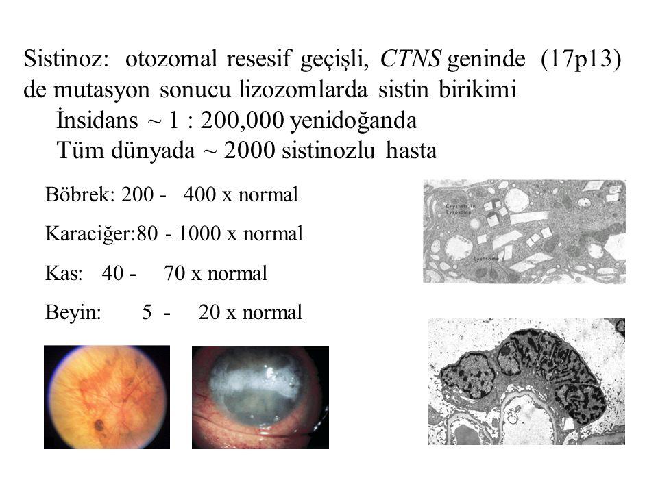 Sistinoz: otozomal resesif geçişli, CTNS geninde (17p13) de mutasyon sonucu lizozomlarda sistin birikimi İnsidans ~ 1 : 200,000 yenidoğanda Tüm dünyad