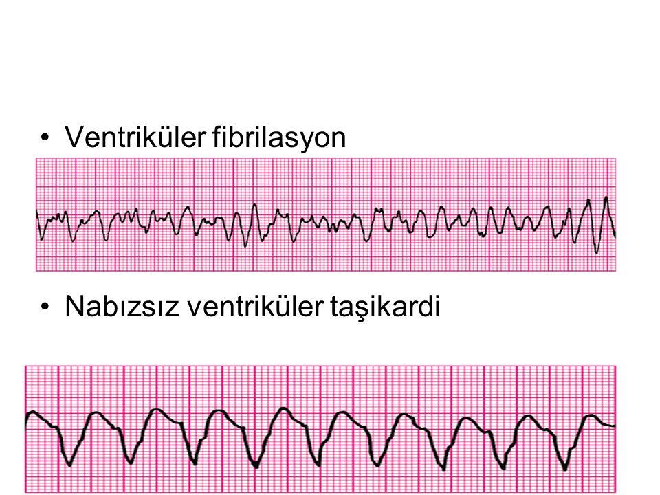 Ventriküler fibrilasyon Nabızsız ventriküler taşikardi