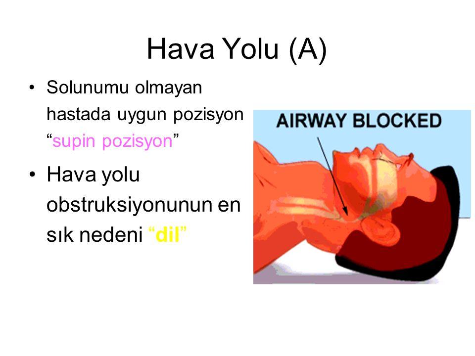 """Hava Yolu (A) Solunumu olmayan hastada uygun pozisyon """"supin pozisyon"""" Hava yolu obstruksiyonunun en sık nedeni """"dil"""""""