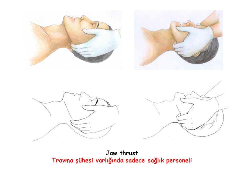 Jaw thrust Travma şühesi varlığında sadece sağlık personeli