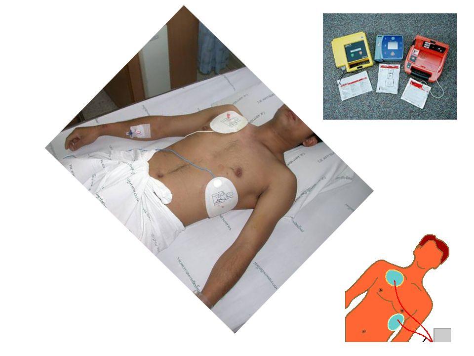 Kardiyopulmoner arrest Kalp ve solunum durması