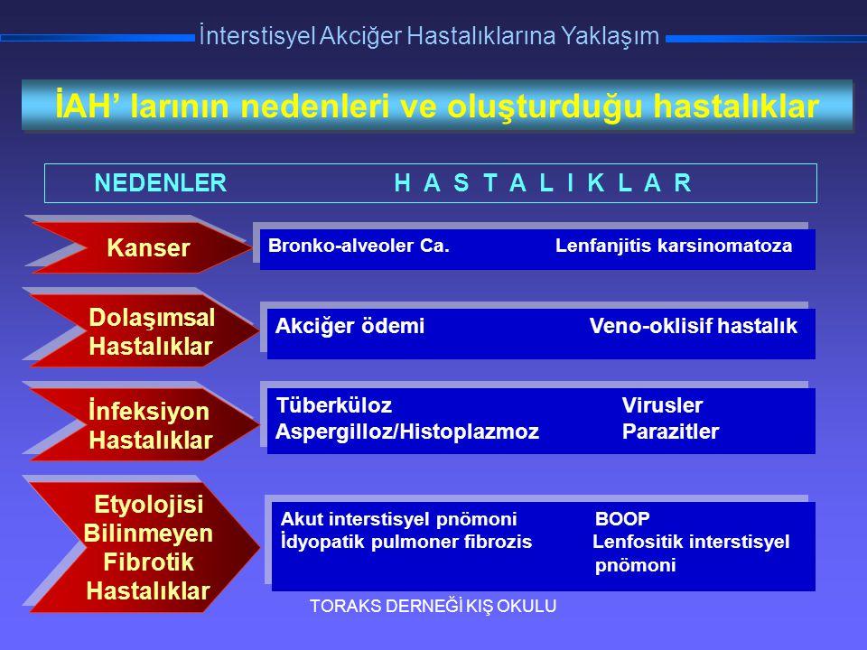 TORAKS DERNEĞİ KIŞ OKULU İnterstisyel Akciğer Hastalıklarına Yaklaşım Kanser Bronko-alveoler Ca. Lenfanjitis karsinomatoza Akciğer ödemi Veno-oklisif