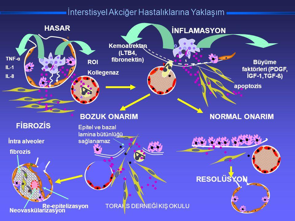 TORAKS DERNEĞİ KIŞ OKULU İnterstisyel Akciğer Hastalıklarına Yaklaşım TNF-α IL-1 IL-8 ROI Kollegenaz HASAR RESOLÜSYON Re-epitelizasyon İntra alveoler